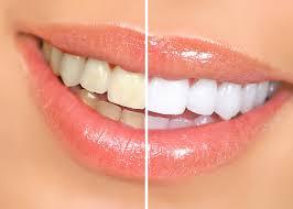 Bersihkan Karang Gigi Membandel Dengan Bahan Alami Nan Murah