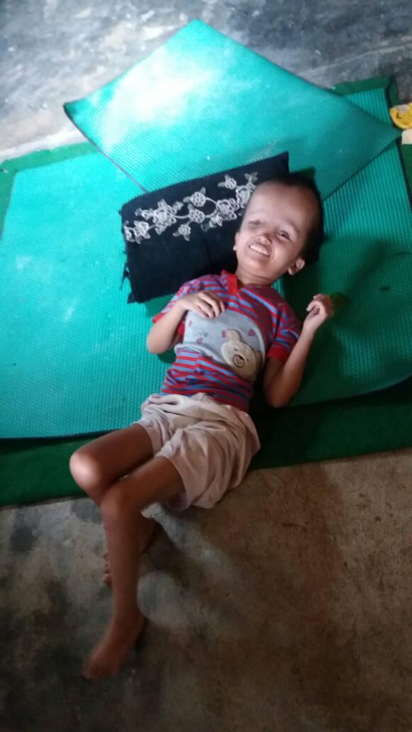 Kesehatan Penderita Hydrocepalus