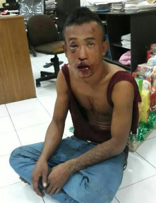 Pembobolan Toko di Medan, Pria Pengangguran Bonyok Dihajar