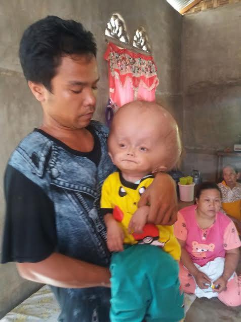 Penderita Hidrosefalus Desa Durian