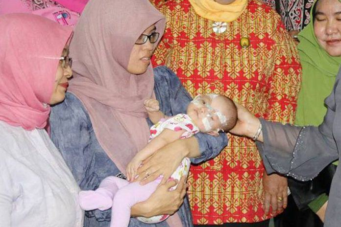 Bayi Penderita Rubella Medan
