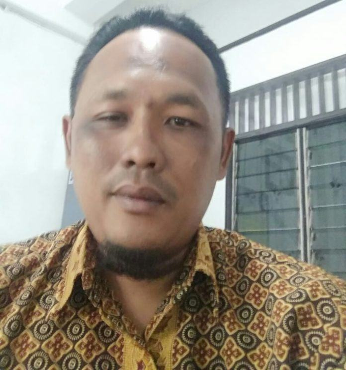 CAS Sumut, Sesalkan Kapoldasu Ogah Minta Maaf soal Pintor Sitorus