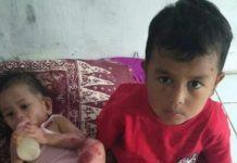 Dua Anak Mandailing Natal, Butuh Bantuan Biaya Berobat ke Rumah Sakit