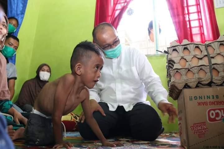 Akhyar Kunjungi Yuda, Anak Penderita Kelainan Fisik Sejak Lahir
